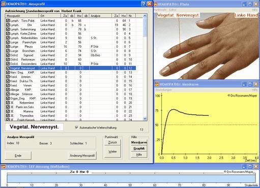 Elektroakupunktur nach Voll bei Naturheilpraxis Jeggle